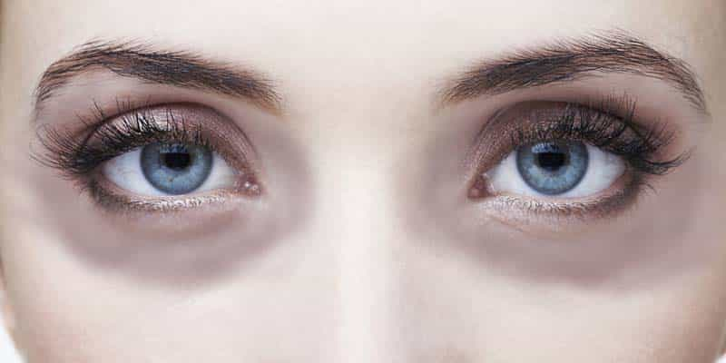 Dark circles quick home remedies